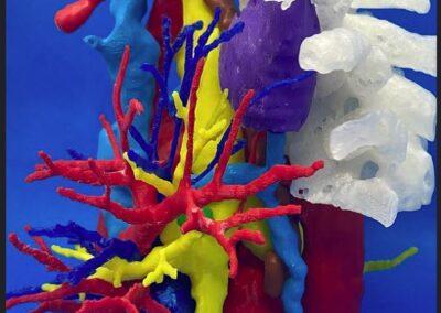 Impresión 3D Torax: carcinoma de pulmón derecho