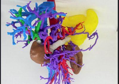 Torax y Abdomen : adenocarcinoma de páncreas