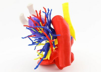 Torax : Carcinoma pulmon